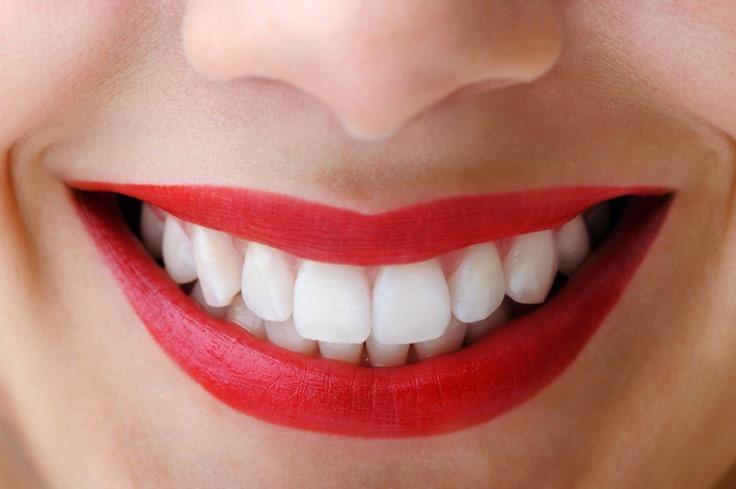 savjet stomatologa-je li štetno izbjeljivanje zuba
