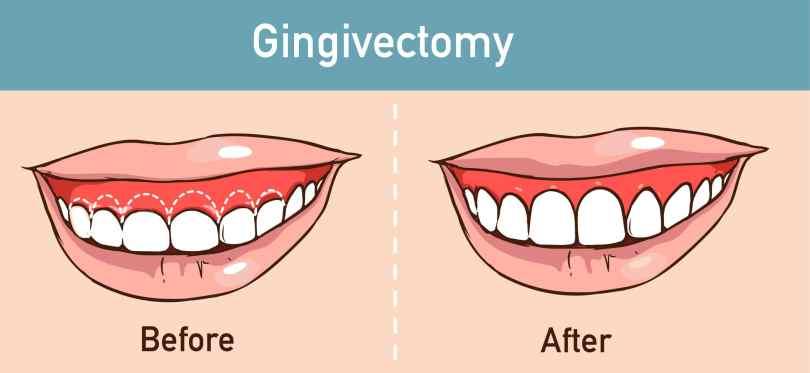 Gingivektomija