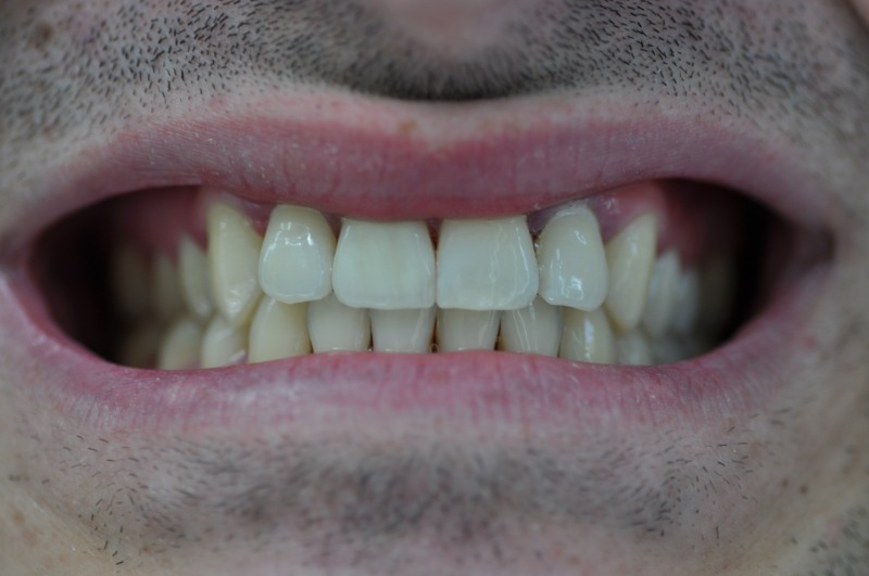 зъбната коронка