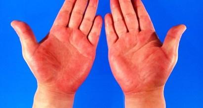 Цветът на дланите