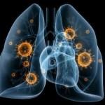 Кои са симптомите на вирусна пневмония?