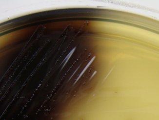 бактерия Листерия