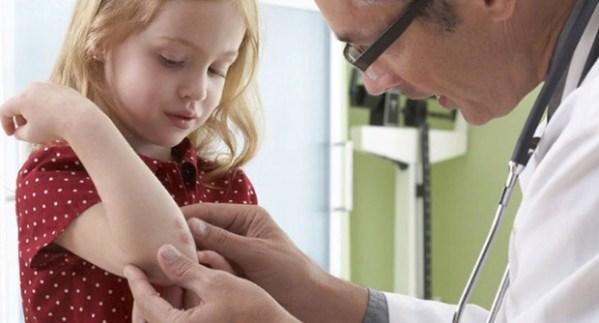 Стригущий лишай у ребенка не теле: как быстро вылечить ...