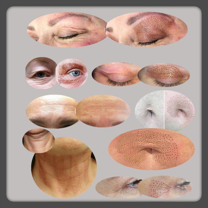 fibroblast tretmani