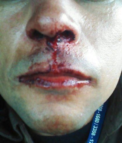 Inspetor de segurança teve nariz fraturado