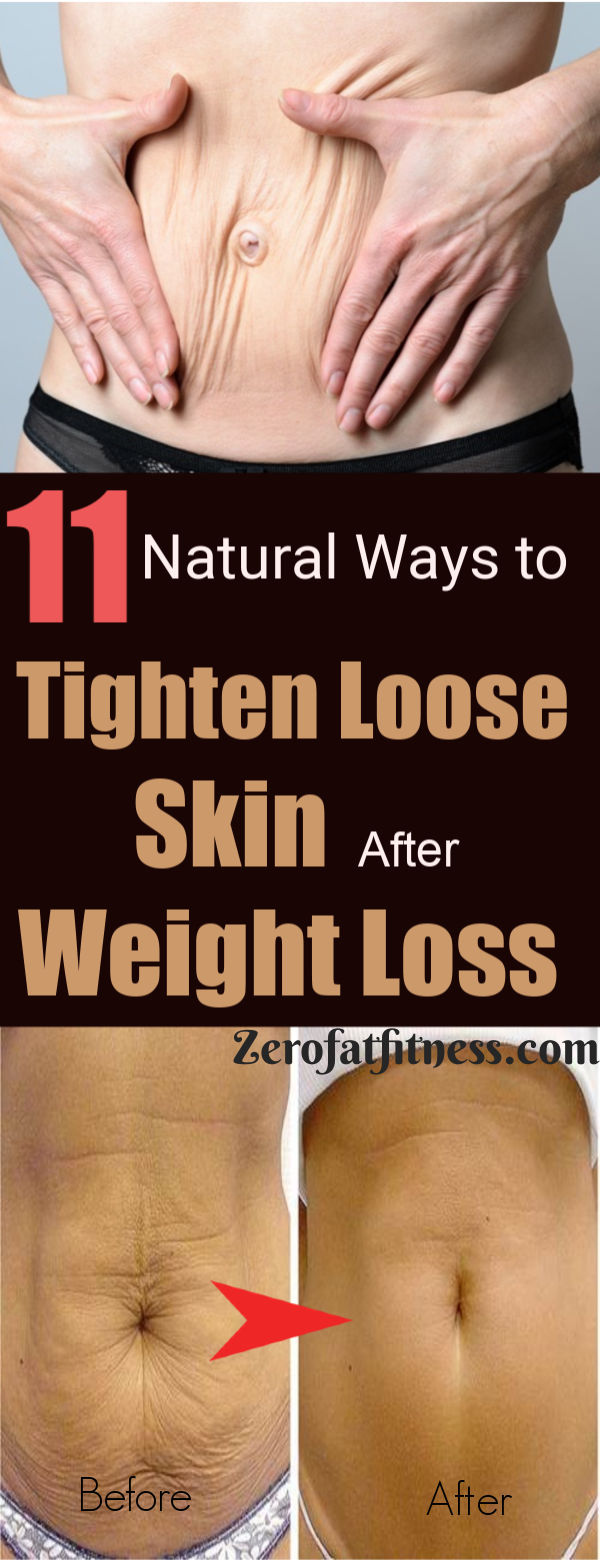 How to Tighten Loose Skin after Weight Loss -11 Best Natural Ways