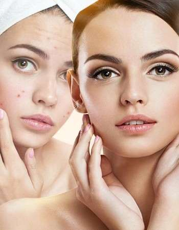 Best Daily Skin Care Routine Steps for Glowing Skin at Home