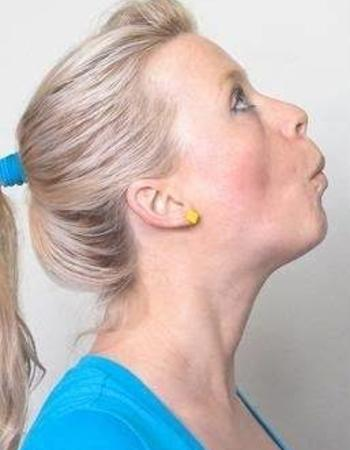 9 Best Anti-Aging Facial Exercises to Get Rid of Neck Fat and Double Chin