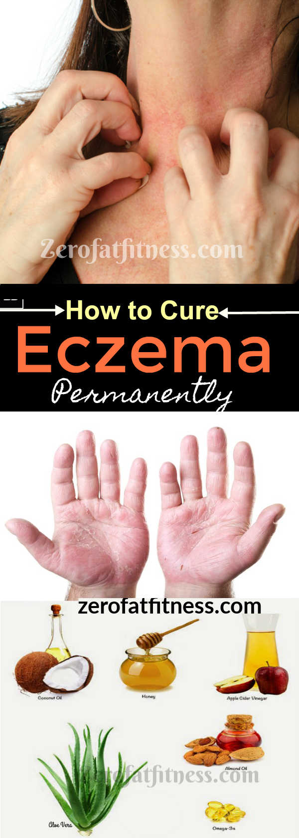 Eczema Treatments - Best Home Remedies to Get Rid of Eczema Fast and Permanently