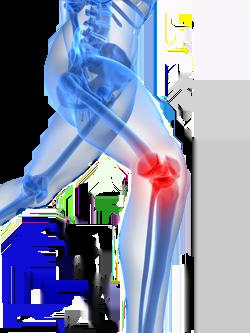 Χονδροπάθεια επιγονατίδας Σύνδρομο επιγονατιδομηριαίου πόνου acl reconstruction1