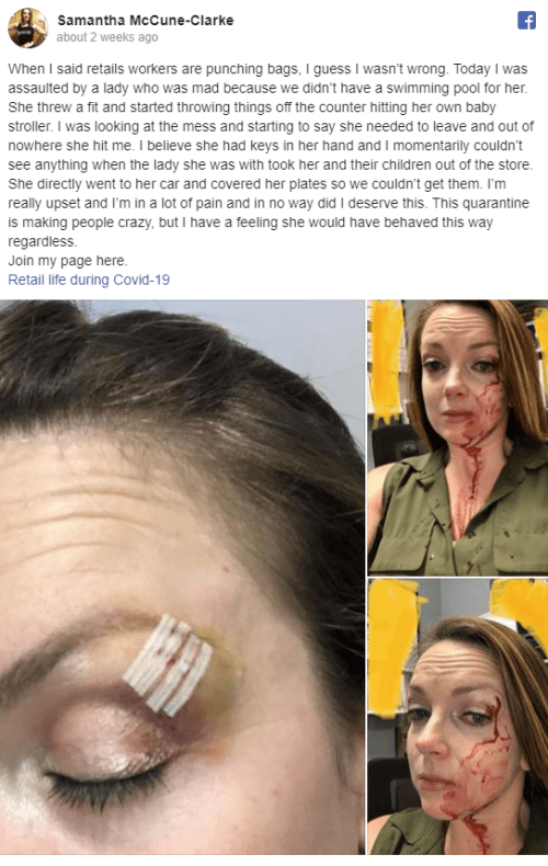 "'Frontline' Employee Starts ""Retail Life During COVID"" Facebook Support Group After Being Assaulted By Customer"