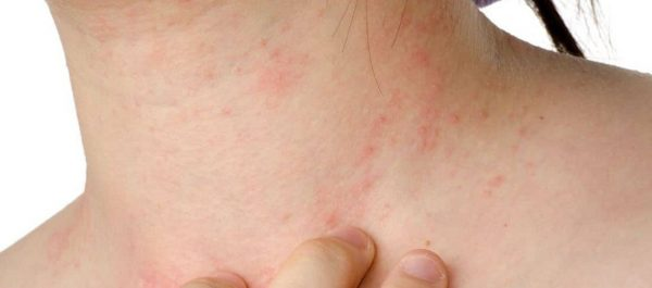 Eczema Relief With These Home Remedies