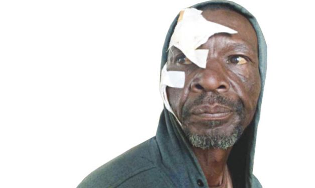 Byo man flees naked from smallhouse lodgings to hospital