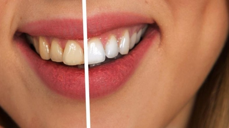 5 Ways Teeth Transformation Could Boost Your Confidence