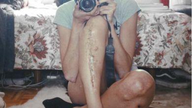 Photo of Andrea Ruano, una artista de piel y huesos