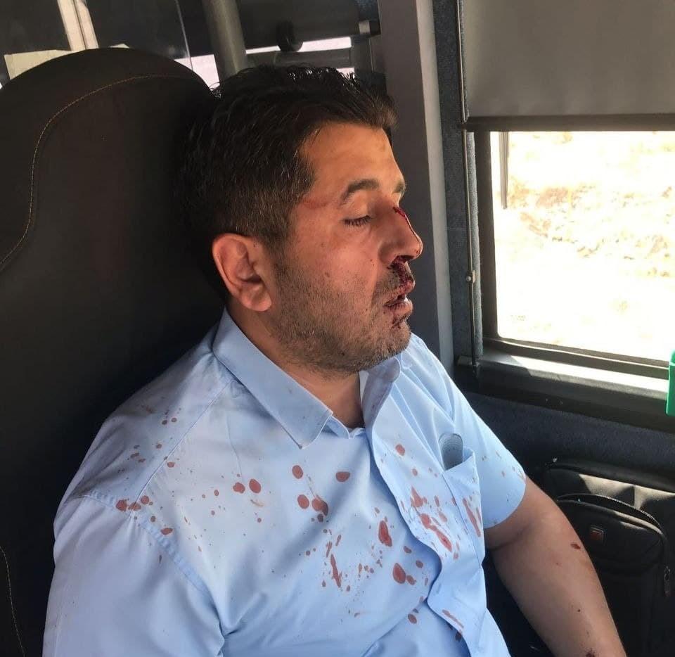 כוח לעובדים הפסיק את השירות: מתנחל תקף נהג אוטובוס ערבי שדרש ממנו לעטות מסכה