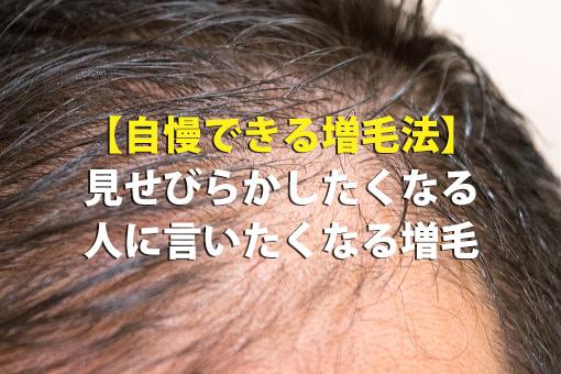 【自慢できる増毛法】見せびらかしたくなる・人に言いたくなる増毛