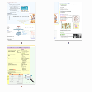 osteoarthritis_map_printable_version