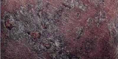 enfermedad paniculitis en perros