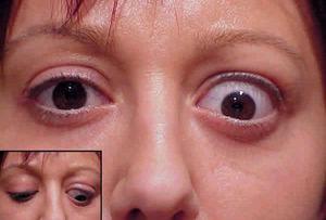 Выпученный один глаз. Причины пучеглазия и методы устранения симптоматики. Экзофтальм — что это такое