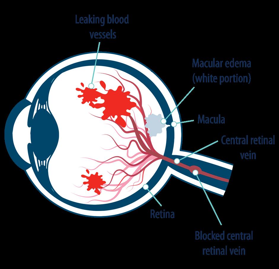 Диабетический отек макулы. Кистозный макулярный отек сетчатки глаза: лечение заболевания