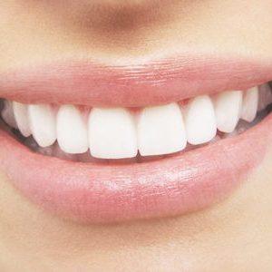 technik, dentystyczny, białe, proste, zęby, dziewczyna, uśmiech