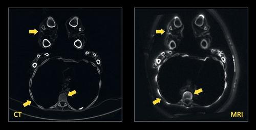 Imagem de corte transversal no peito da múmia. As setas amarelas mostram ossos e cartilagens, que não eram vistos em ressonâncias convencionais.
