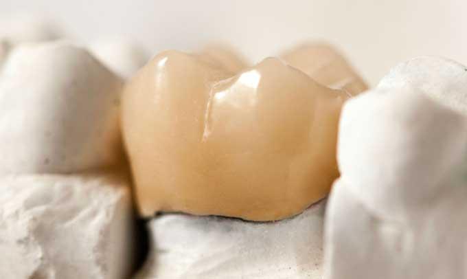 Уход за керамическими зубами и коронками. Как ухаживать за коронками из металлокерамики. Исправление прикуса коронками –
