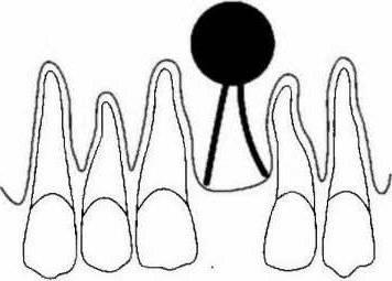 miért nem kezelik a pikkelysmr pikkelysömör kezelése a fején jóddal
