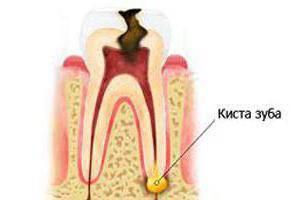 Почему болят зубы после удаления нерва: возможные причины и способы лечения. Зуб без нерва, но болит: возможно ли это и почему