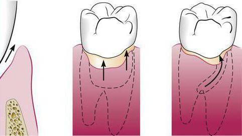 Как вылечить десневой карман между зубами. Десневой карман — воспаление: причины, лечение