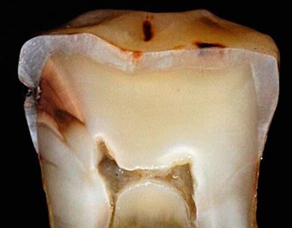 Кариес зубов в декомпенсированной форме. Коротко о терминологии