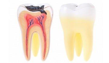 Можно ли убить зубной нерв чесноком. Как убить нерв в зубе: профессиональные и народные методы. Как убить нерв в зубе в домашних условиях