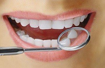 Можно ли удалять зуб когда идут месячные