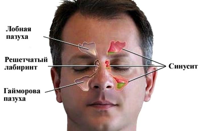 Почему болит передний верхний зуб – симптомы и возможные патологии. Как быть, если болит передний зуб: особенности лечения