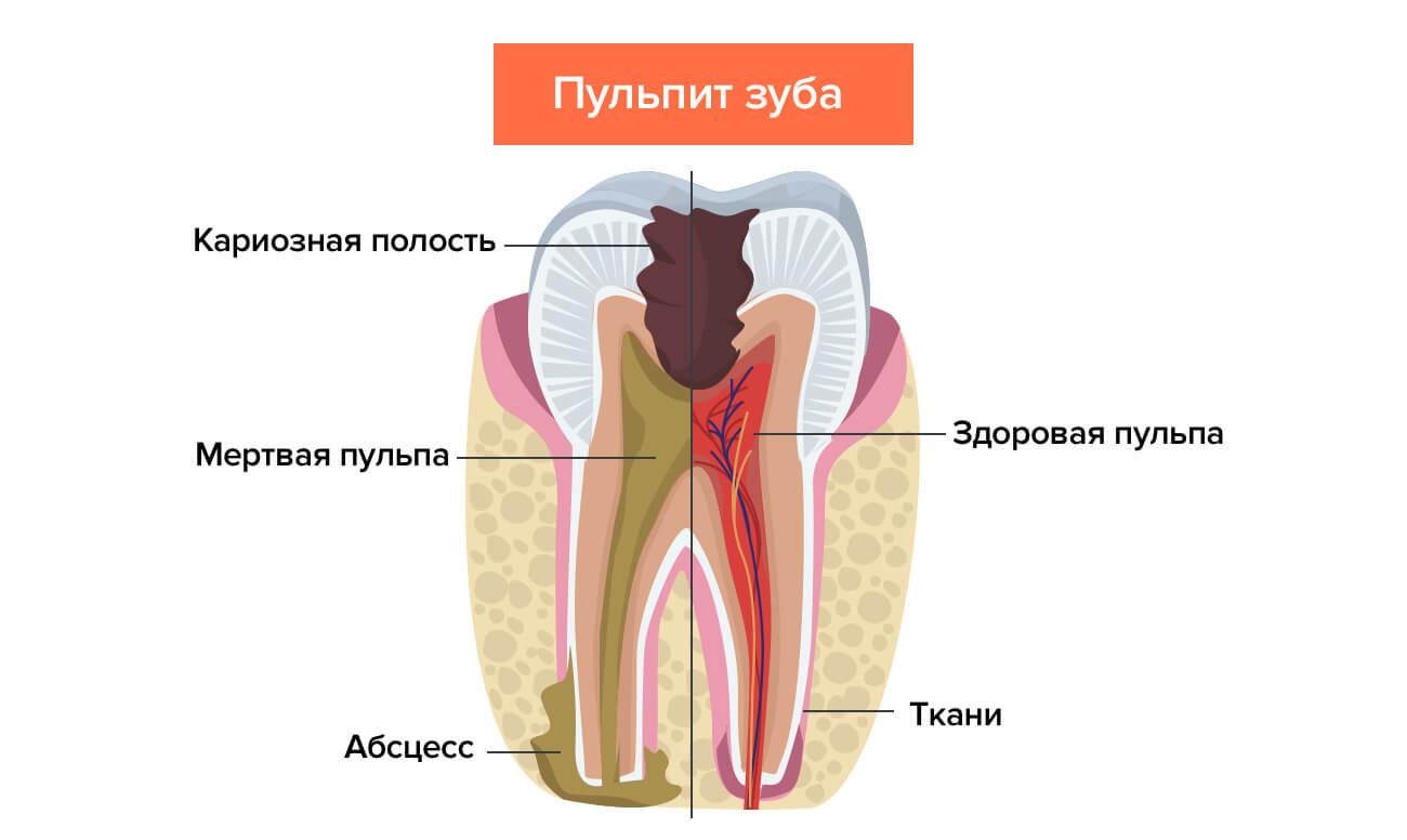 Поможет ли найз при зубной боли. Найз от зубной боли — эффективен или нет? Противопоказания к применению