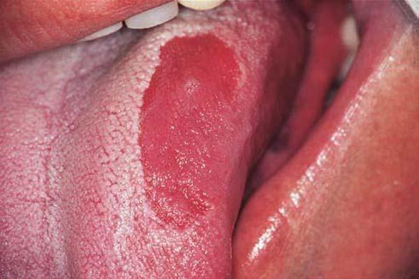 arderea limbii grase