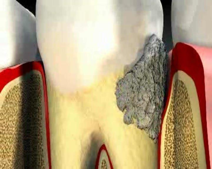 Что делать при кариесе зуба мудрости: лечить или удалять. В каких случаях лечат зубы мудрости? показания для удаления