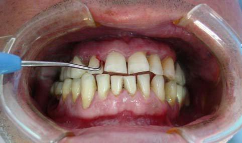 decizia dinților provoacă pierderea în greutate