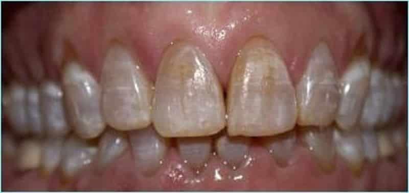 Как восстановить структуру эмали в домашних условиях строение зубного покрытия симптомы повреждения и реставрация