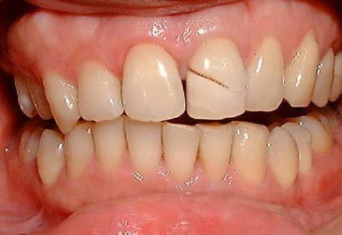 Что делать если от переднего или жевательного зуба откололся кусочек как избежать дальнейшего разрушения