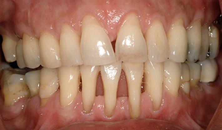 Чешется десна после удаления зуба