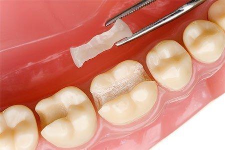 Обзор лучших популярных зубных пломб и их сравнение