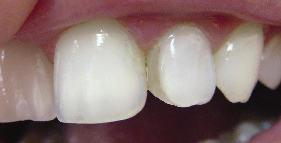 Отбеливание если все зубы пломбированные