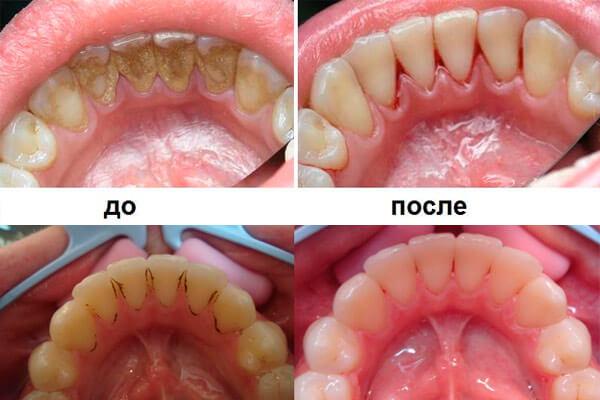 Ультразвуковая чистка зубов: противопоказания к проведению