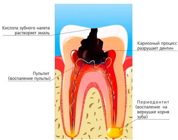 Основные отличия кариеса от пульпита. Симптомы и лечение пульпита зуба: отличия от кариеса, осложнения и список лекарств от воспаления