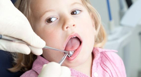 Пародонтит у детей - БолезньИнформ