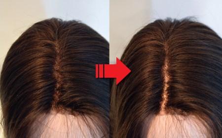 髪の分け目の「ポツポツ」をちょっと目立たなくする方法