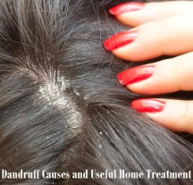 home remedies for dandruff 03