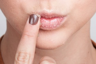 how-to-cure-chapped-lips-011